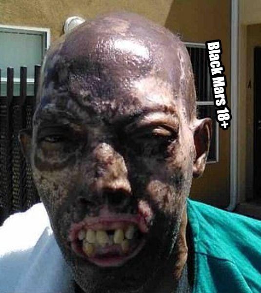 В 2013 году афроамериканец Роберт Челси получил страшные травмы и ожоги по вине пьяного водителя Роберт сидел в своей машине, когда в нее на полной скорости врезался автомобиль с пьяным в хлам