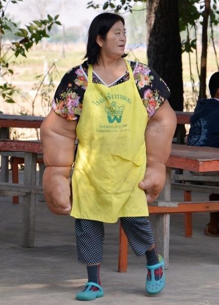 На протяжении уже 50 с лишним лет тайская владелица магазина Дуангджей Самаксамам страдает от довольного редкого и неприятного заболевания - липоматозом Из-за этой болезни в руках Дуангджей